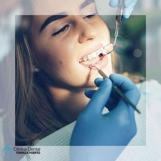 La adolescencia es el momento ideal para la ortodoncia