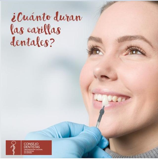 ¿Cuantos duran las carillas dentales?